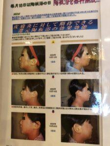 富山市の注文住宅の抗酸化陶板浴の体験談